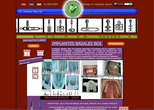 clinicas dentales valladolid